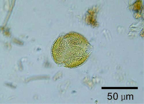 Picture: The pollen of Aucuba japonica in the soil immediately b