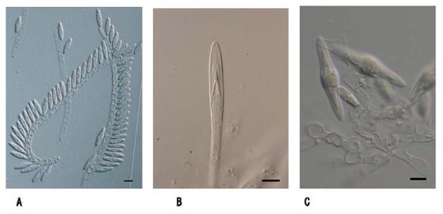 Figure 1. Microscopic images of the three new species of filamen
